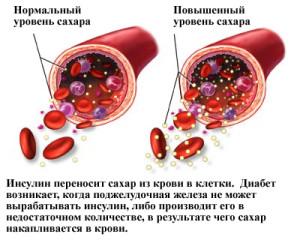 Норма инсулина в крови — детально о важном